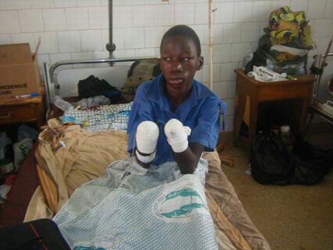 Maltraitance des enfants: Un orphelin ligoté et frappé par son oncle à Tenado voit ses deux mains amputées au CHR de Koudougou.