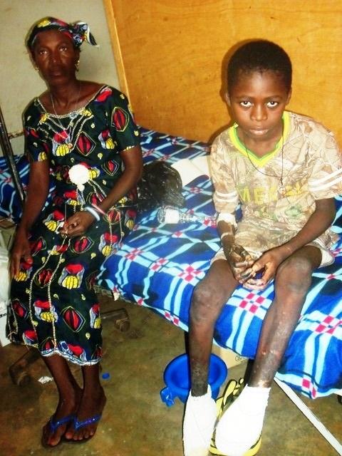 Hôpital de Gaoua: Le ministre de la femme a rendu visite à l'enfant amputé Roland Somé