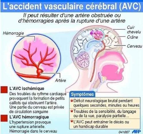 Dossier Santé: L'AVC, Première partie